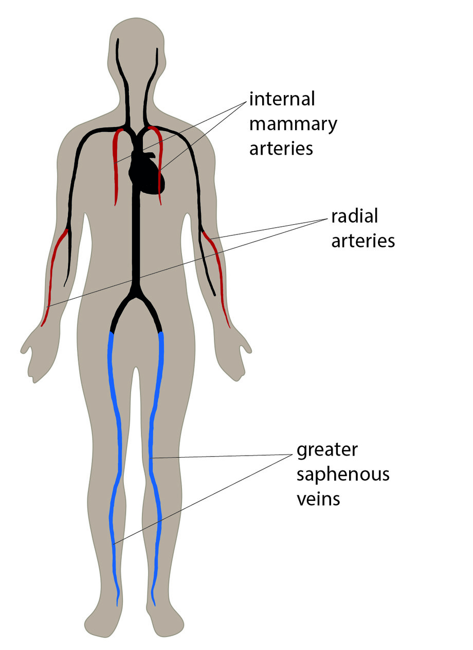 Arteries And Veins Diagram Coronary Artery Pass Graft Cabg How Its Performed Nhs