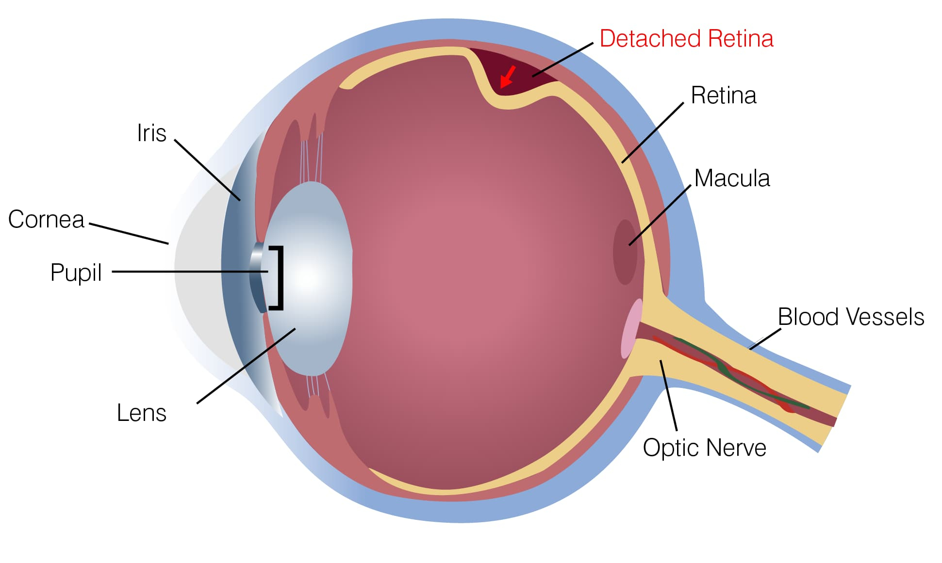 Diagram Of The Eye Learn About Vision Disorders Detached Retinas Eyeglass World