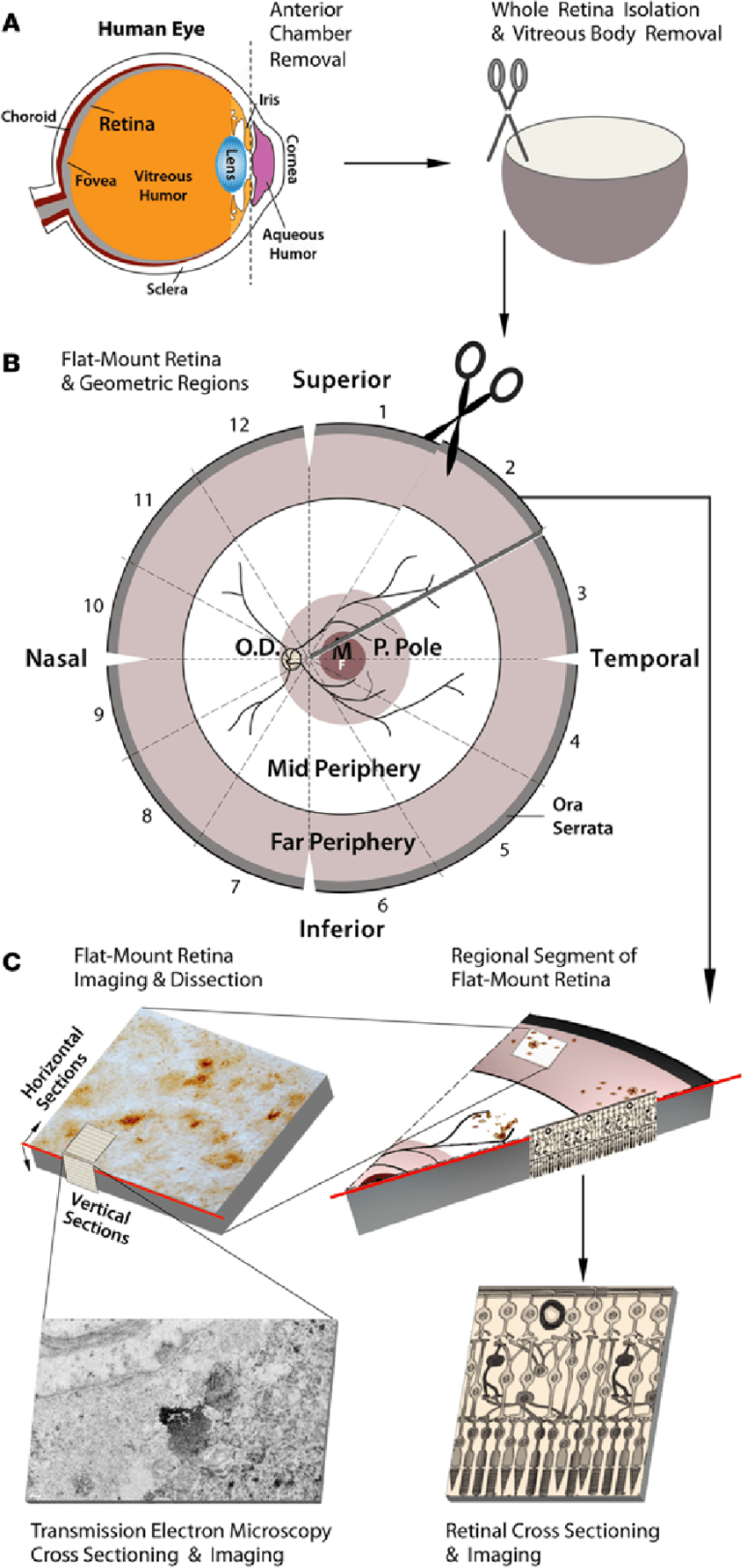 Diagram Of The Eye Schematic Diagram Of Donor Eye Dissection Retinal Isolation And