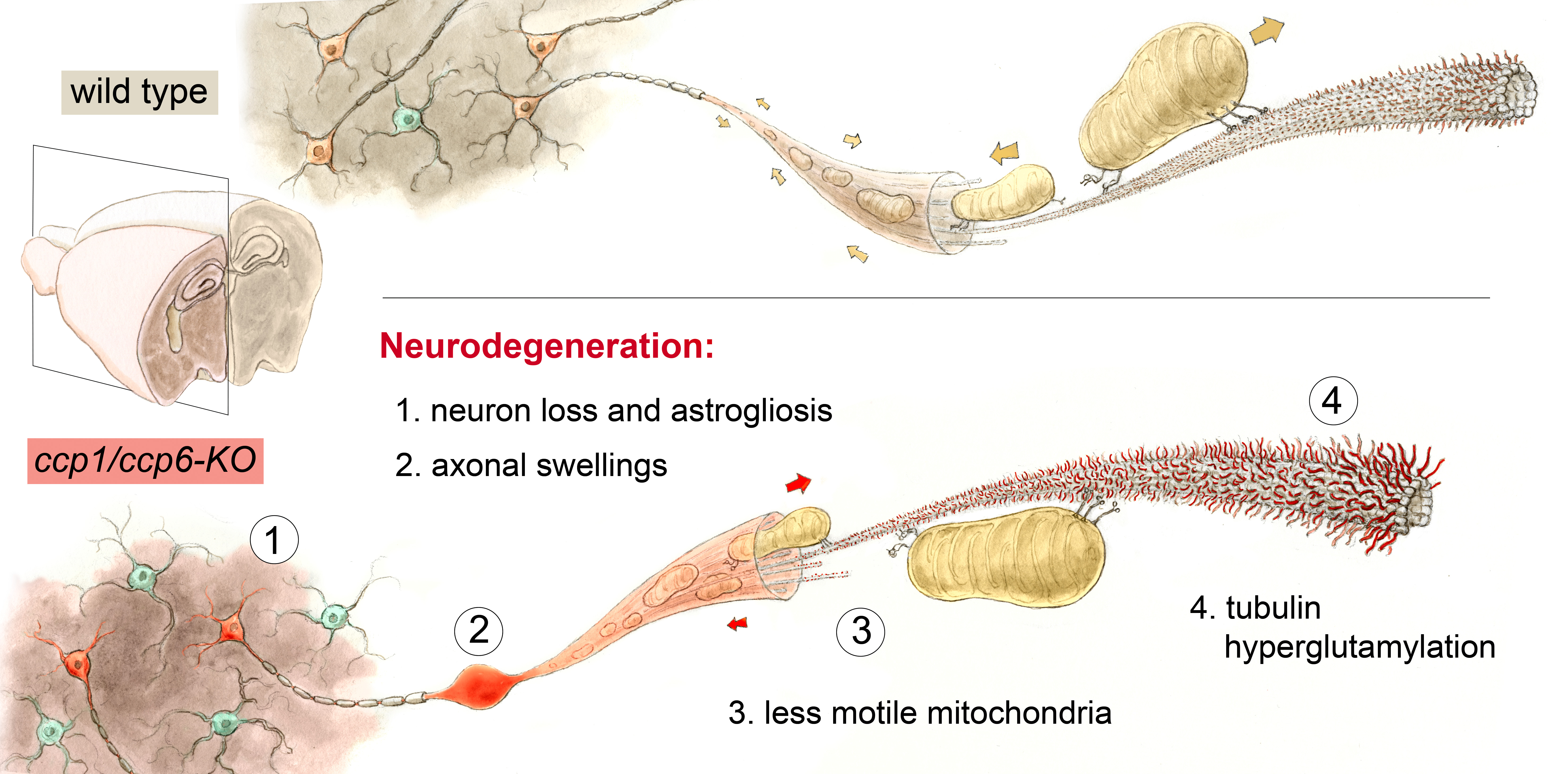 Diagram Of A Neuron Microtubules The Critical Highways Of Neurons Must Stay Clear