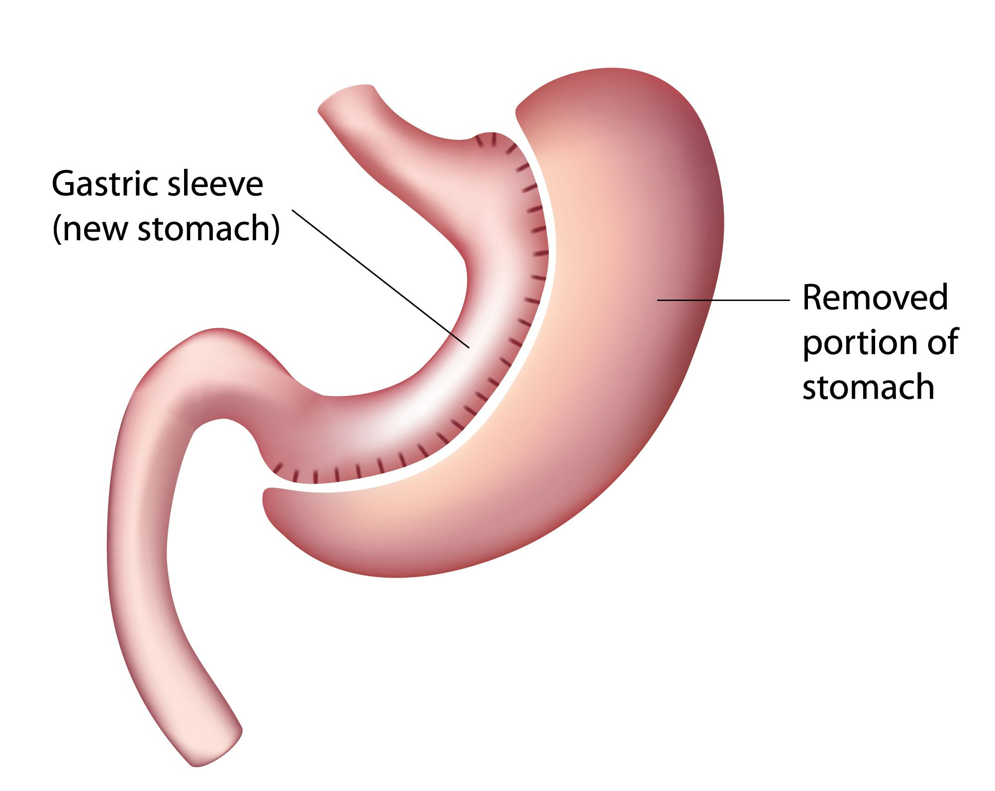 Diagram Of Stomach Gastric Sleeve Surgery Mu Health Care Columbia Mo
