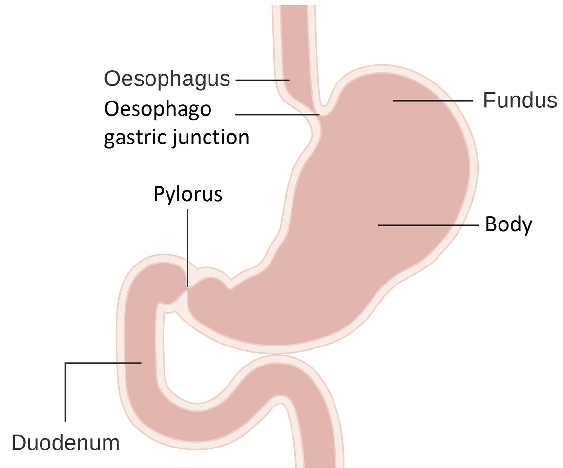 Diagram Of Stomach Stomach Cancer Scan