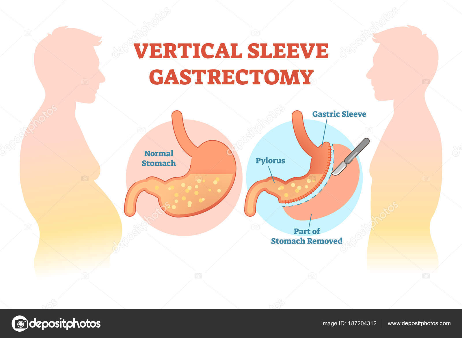 Diagram Of Stomach Vertical Sleeve Gastrectomy Medical Vector Illustration Diagram With