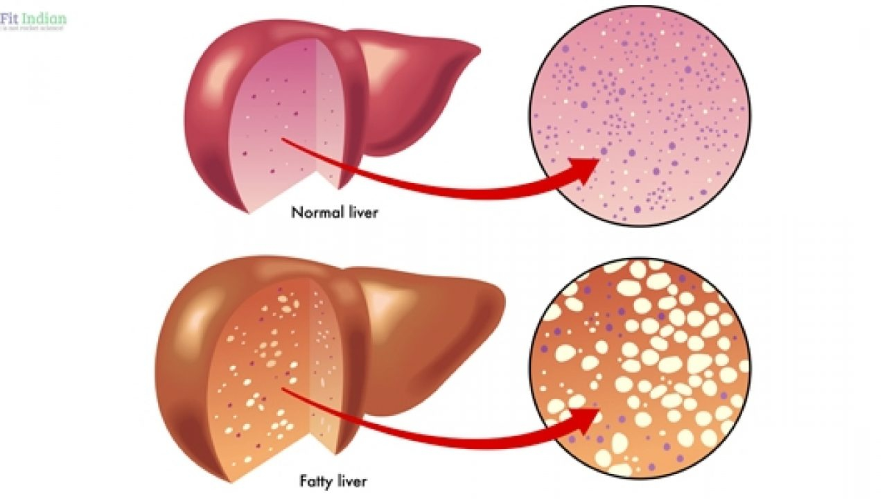 Diagram Of The Liver 14 Natural Home Remedies For Liver Disease With 6 Potent Juices