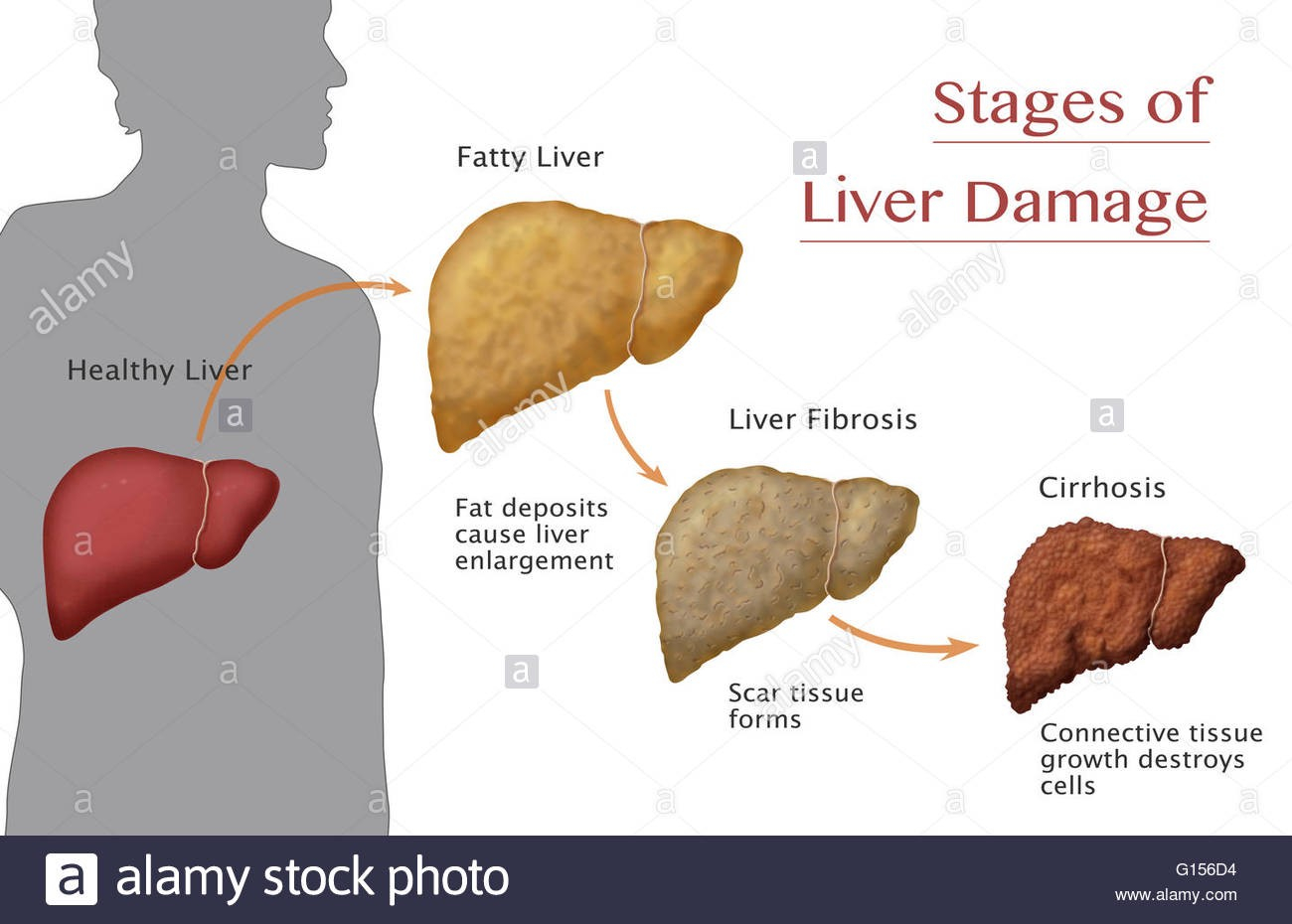 Diagram Of The Liver Artificial Intelligence In Health Care Liver Fibrosis Prostate