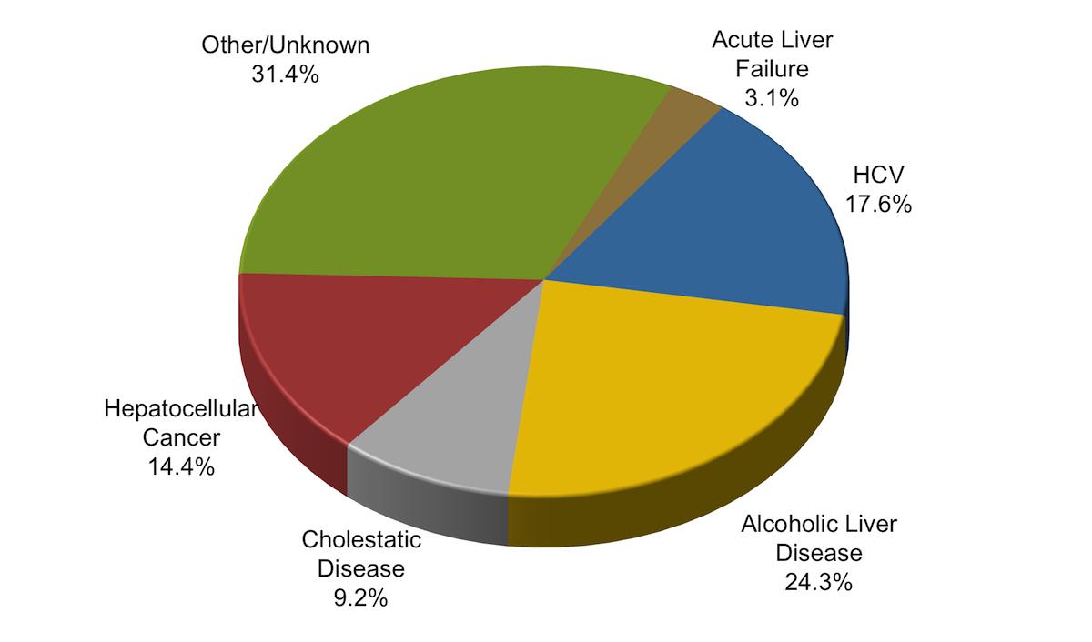 Diagram Of The Liver Core Concepts Referral For Liver Transplantation Management Of