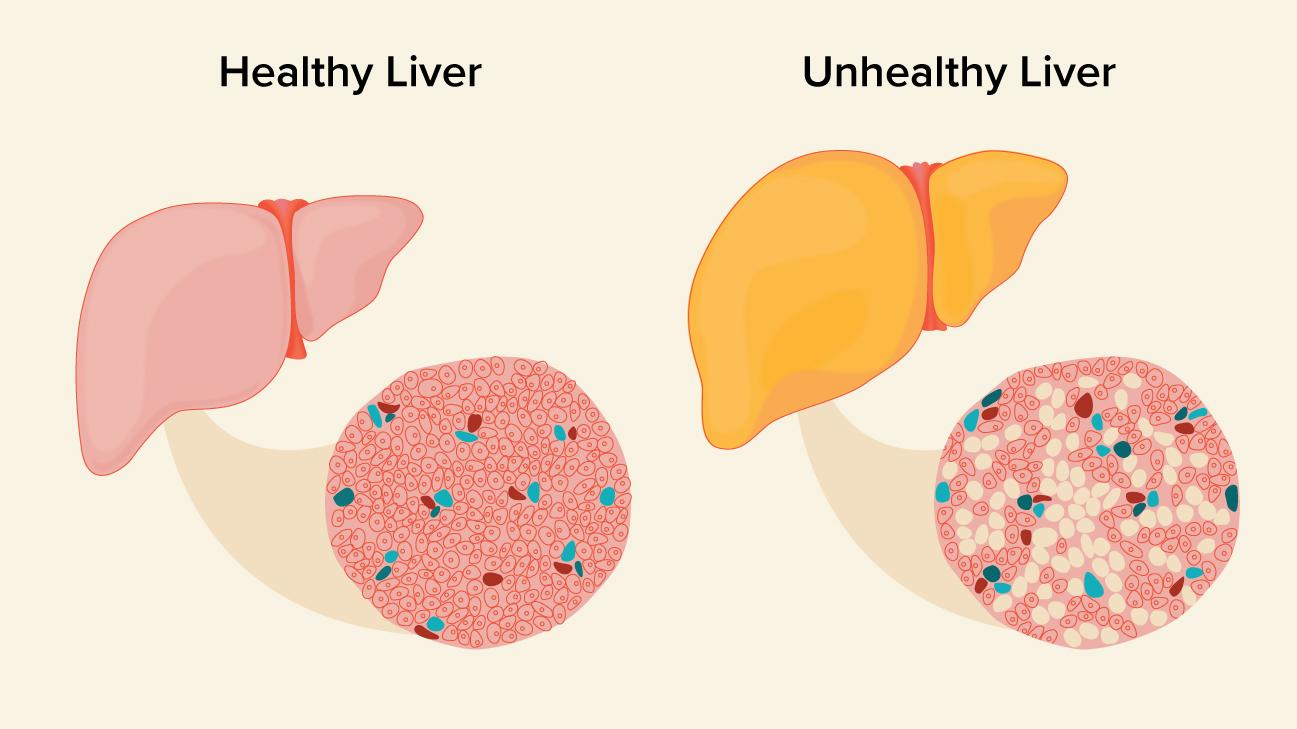 Diagram Of The Liver Fatty Liver Causes Symptoms And Diagnosis