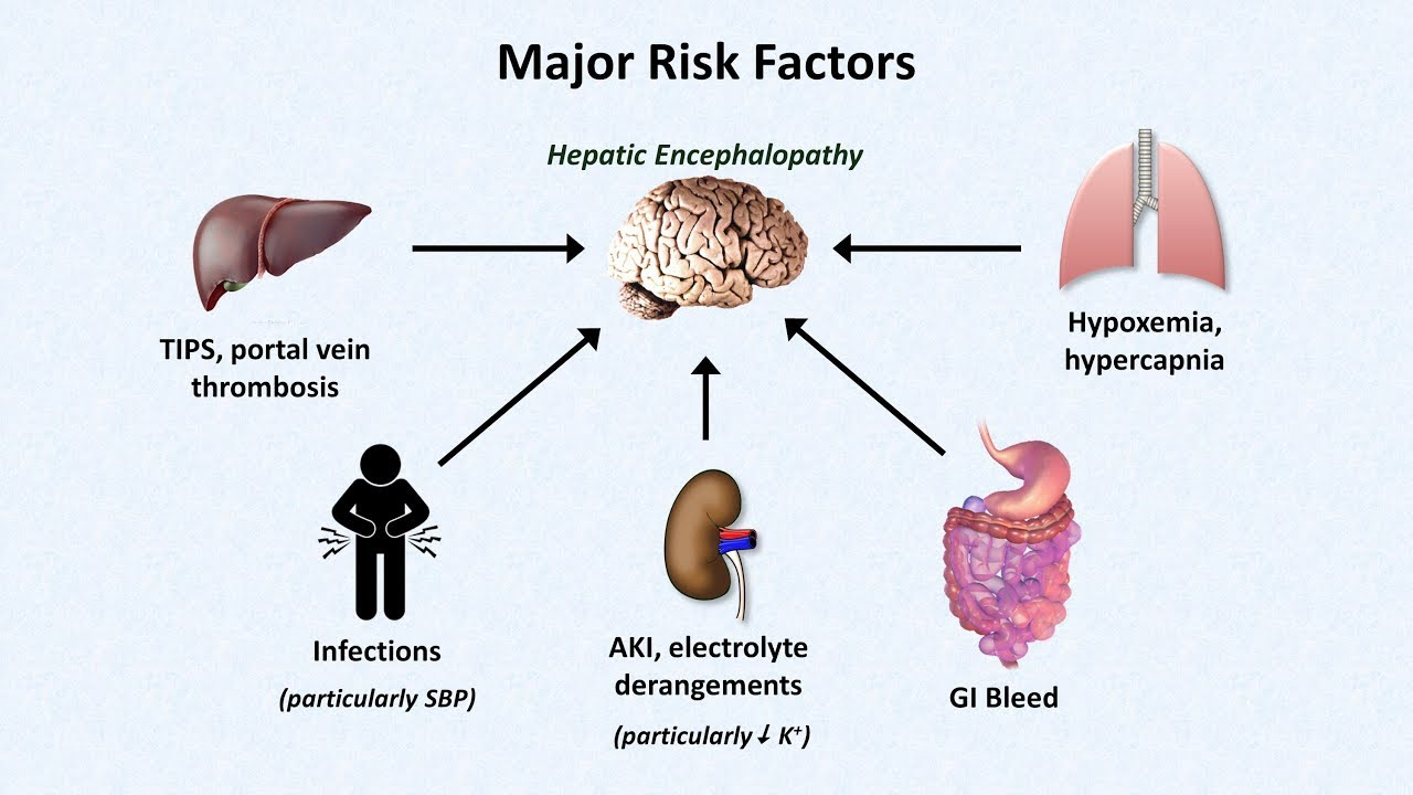 Diagram Of The Liver Hepatic Encephalopathy