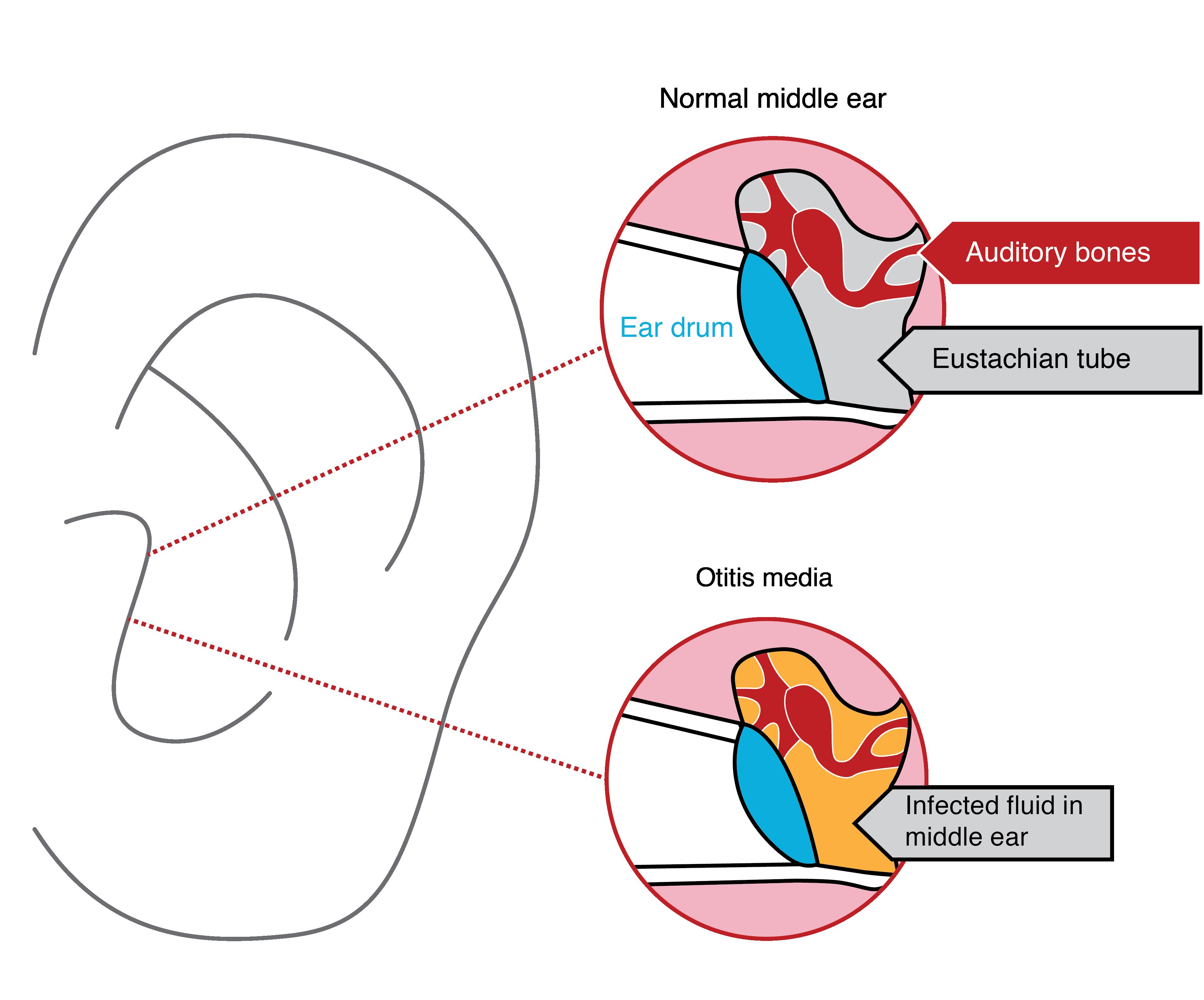 Ear Infection Diagram Painguide When Life Cant Wait