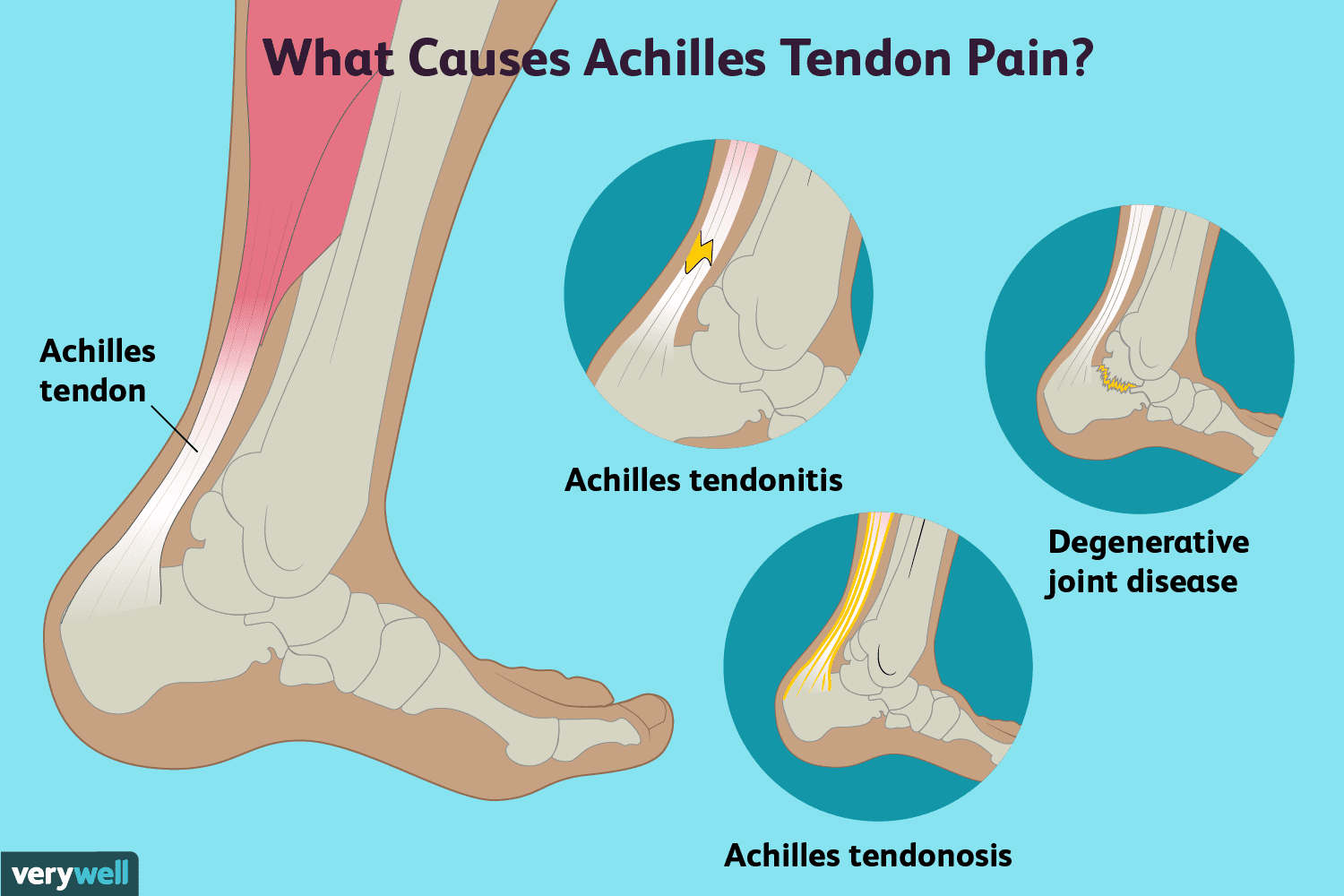 Foot Pain Diagram Achilles Tendon Pain Causes Treatment And When To See A Doctor