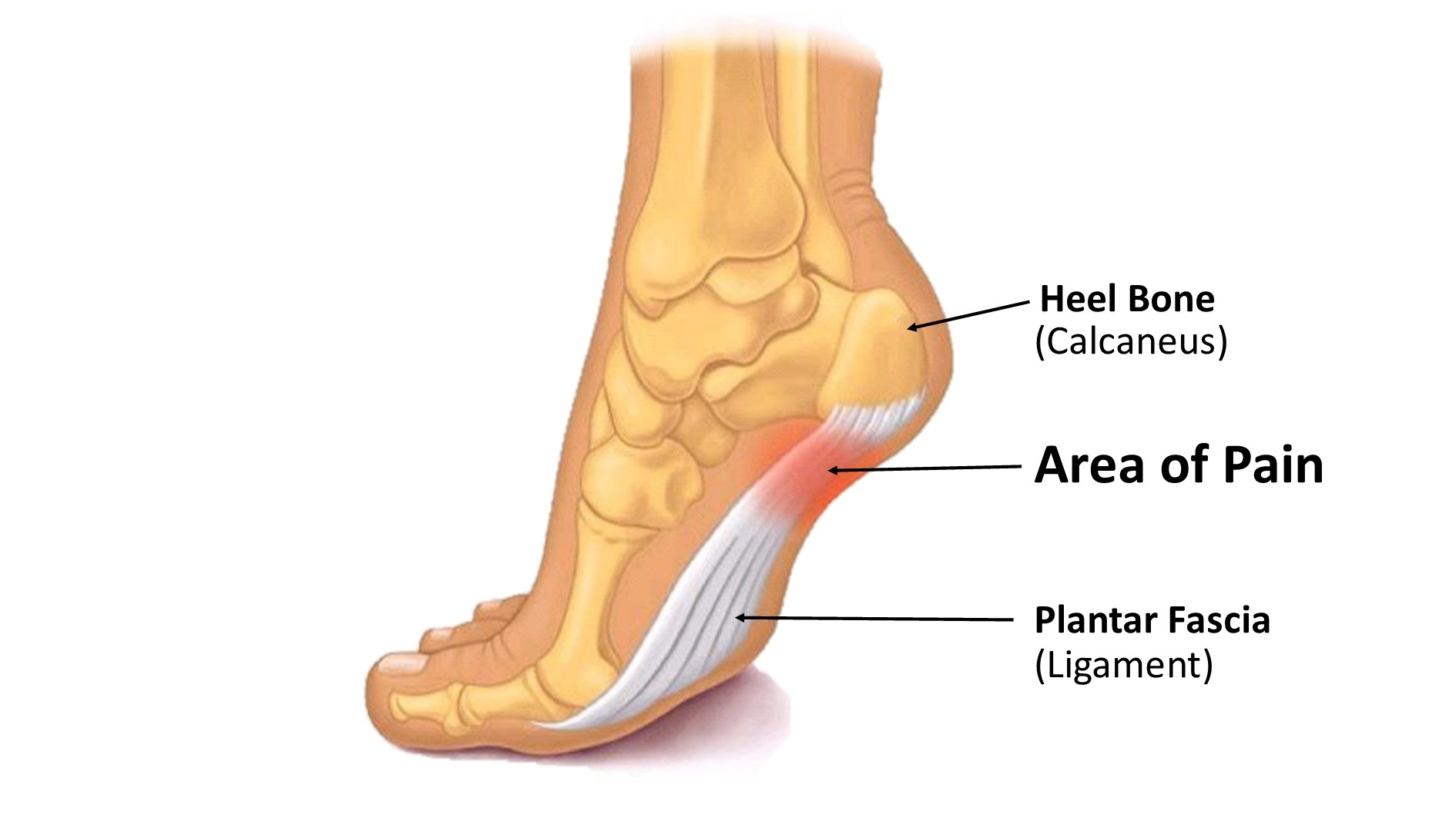 Foot Pain Diagram Blog Post Best Solutions For Plantar Fasciitis Foot Leg And