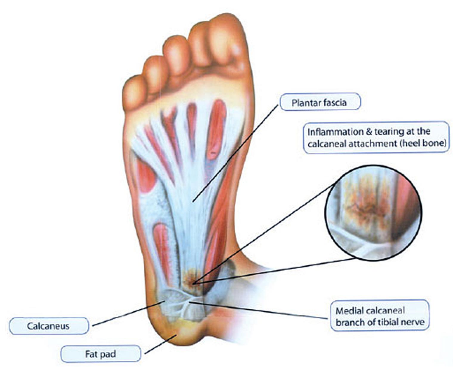 Foot Pain Diagram Brampton Mississauga Foot Pain Clinic Heel Pain