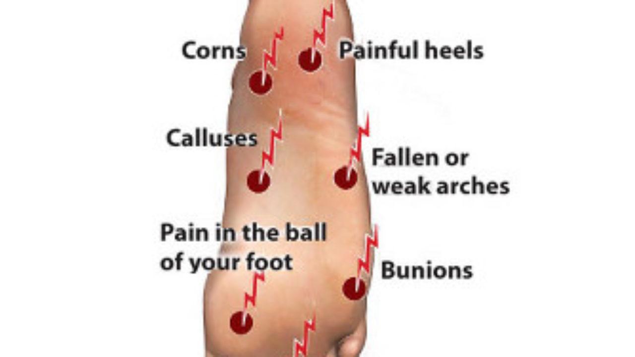 Foot Pain Diagram Diagram Of Foot Pain Foot Good