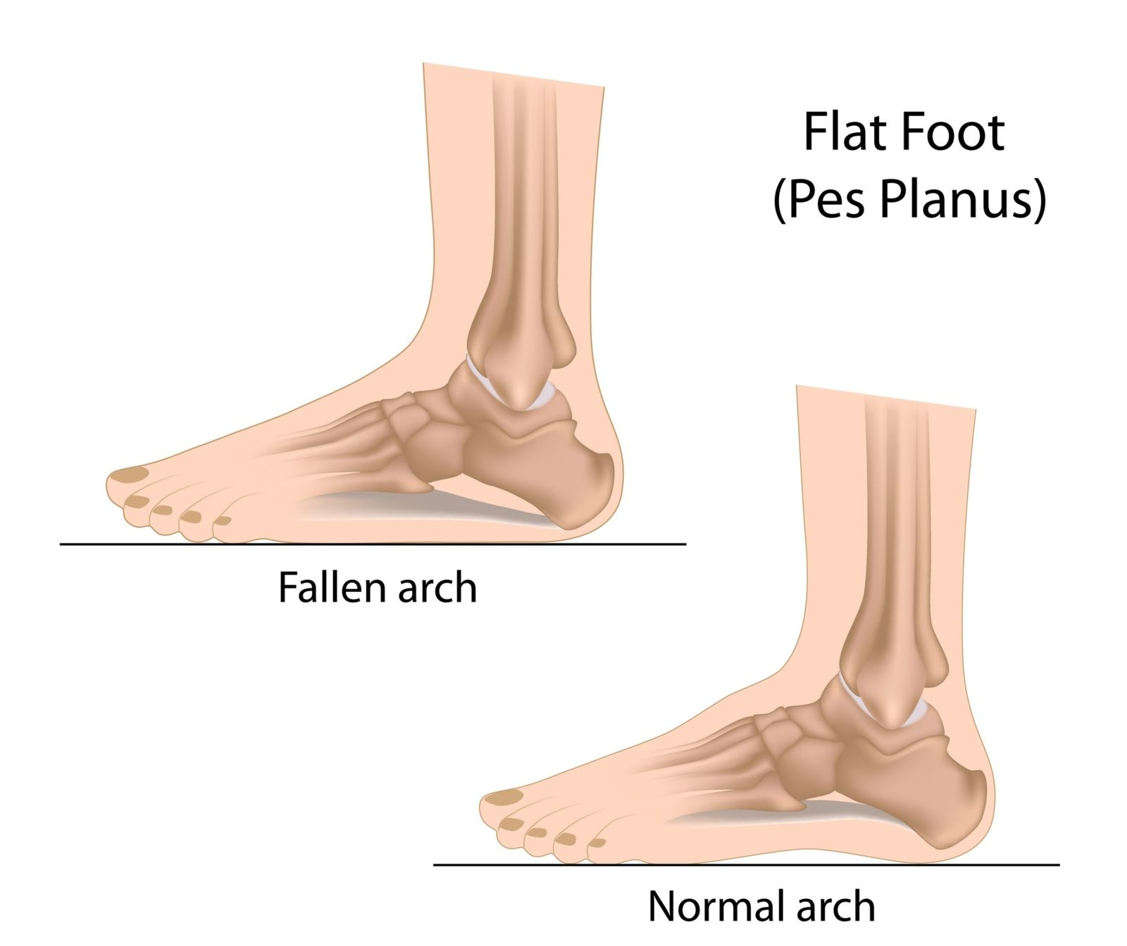 Foot Pain Diagram Foot Pain Caused Flat Feet Can Be Treated Healthmark Foot