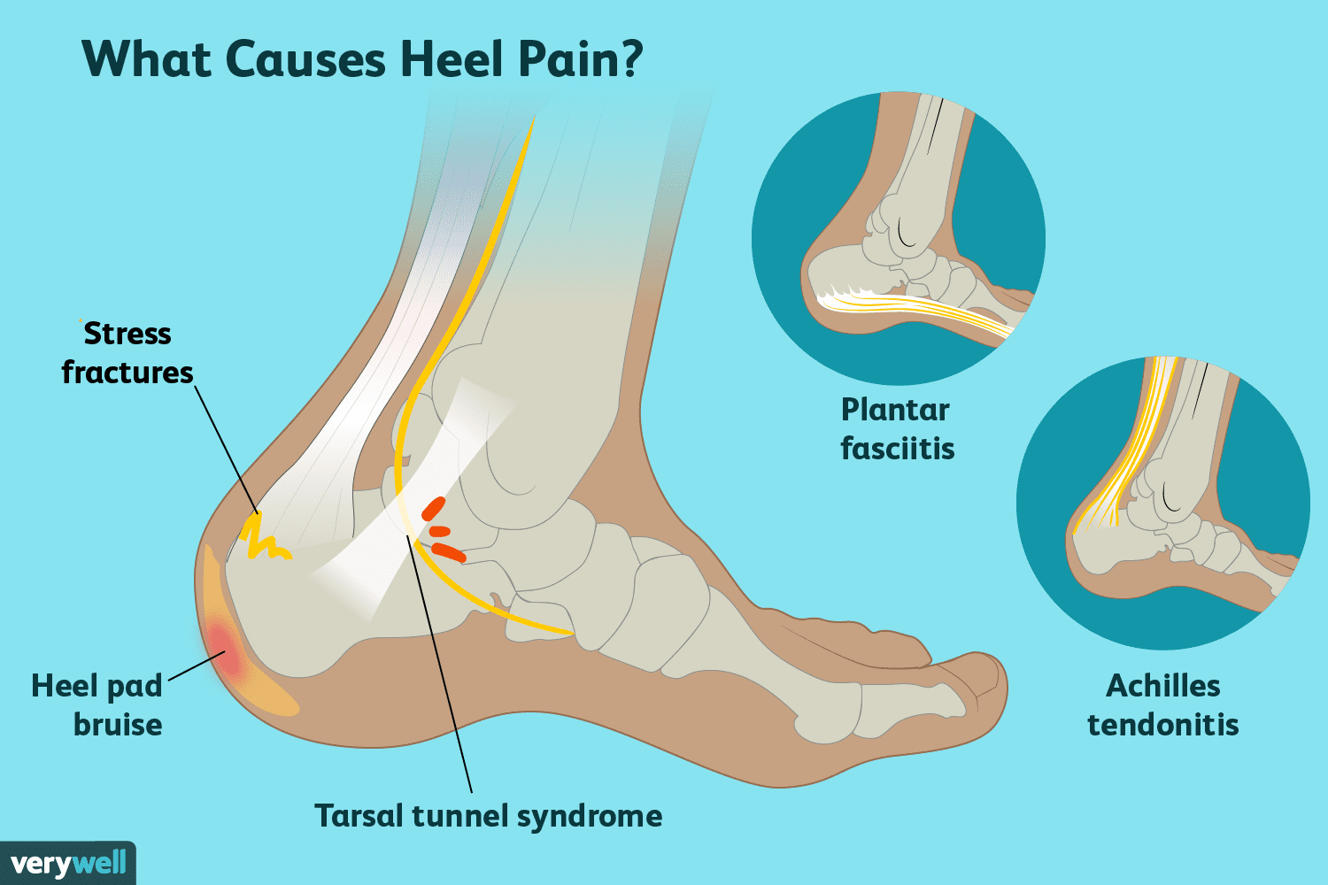 Foot Pain Diagram Heel Pain Causes Treatment And When To See A Doctor