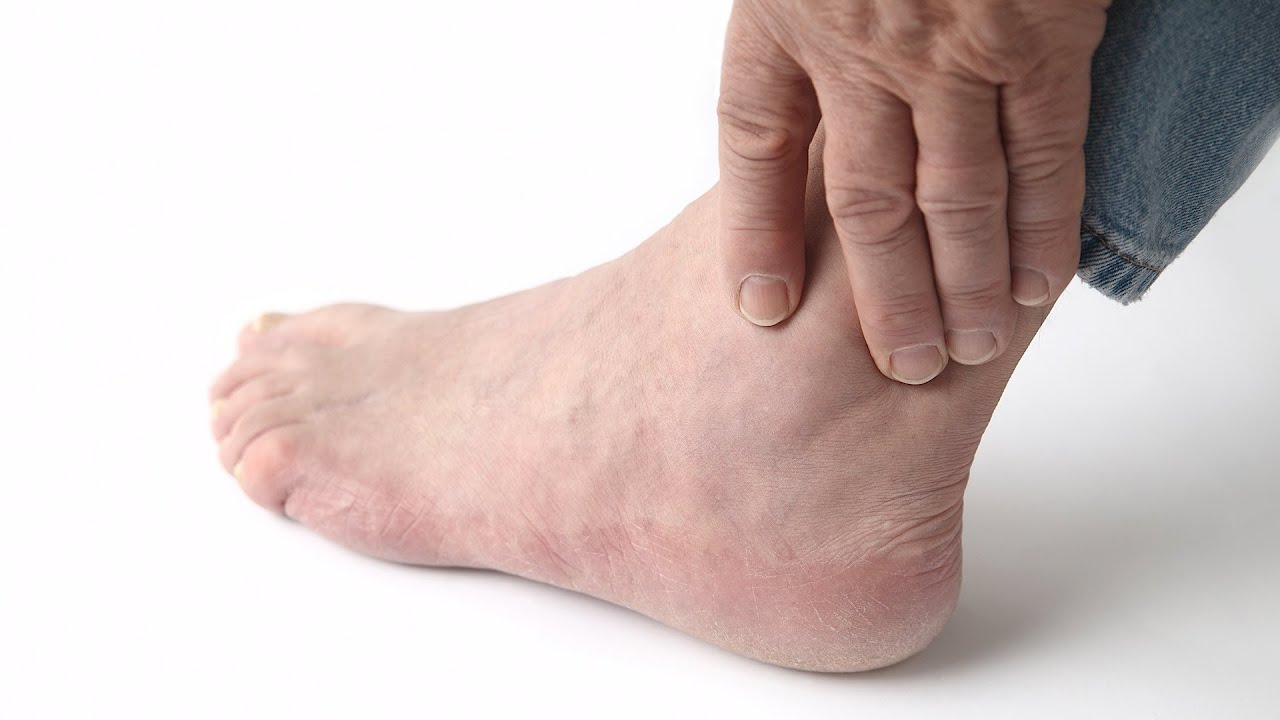 Foot Pain Diagram How To Recognize Gout Symptoms Foot Care