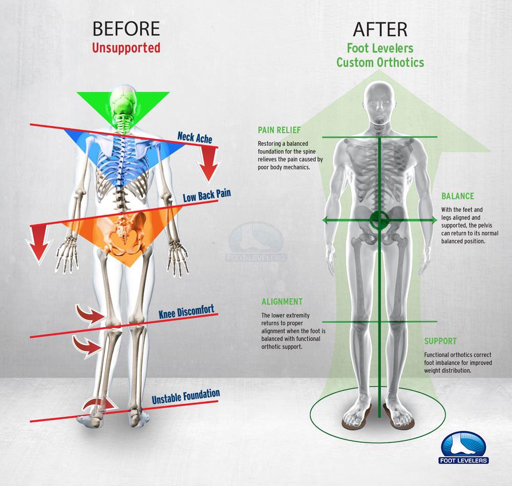 Foot Pain Diagram Low Back Pain