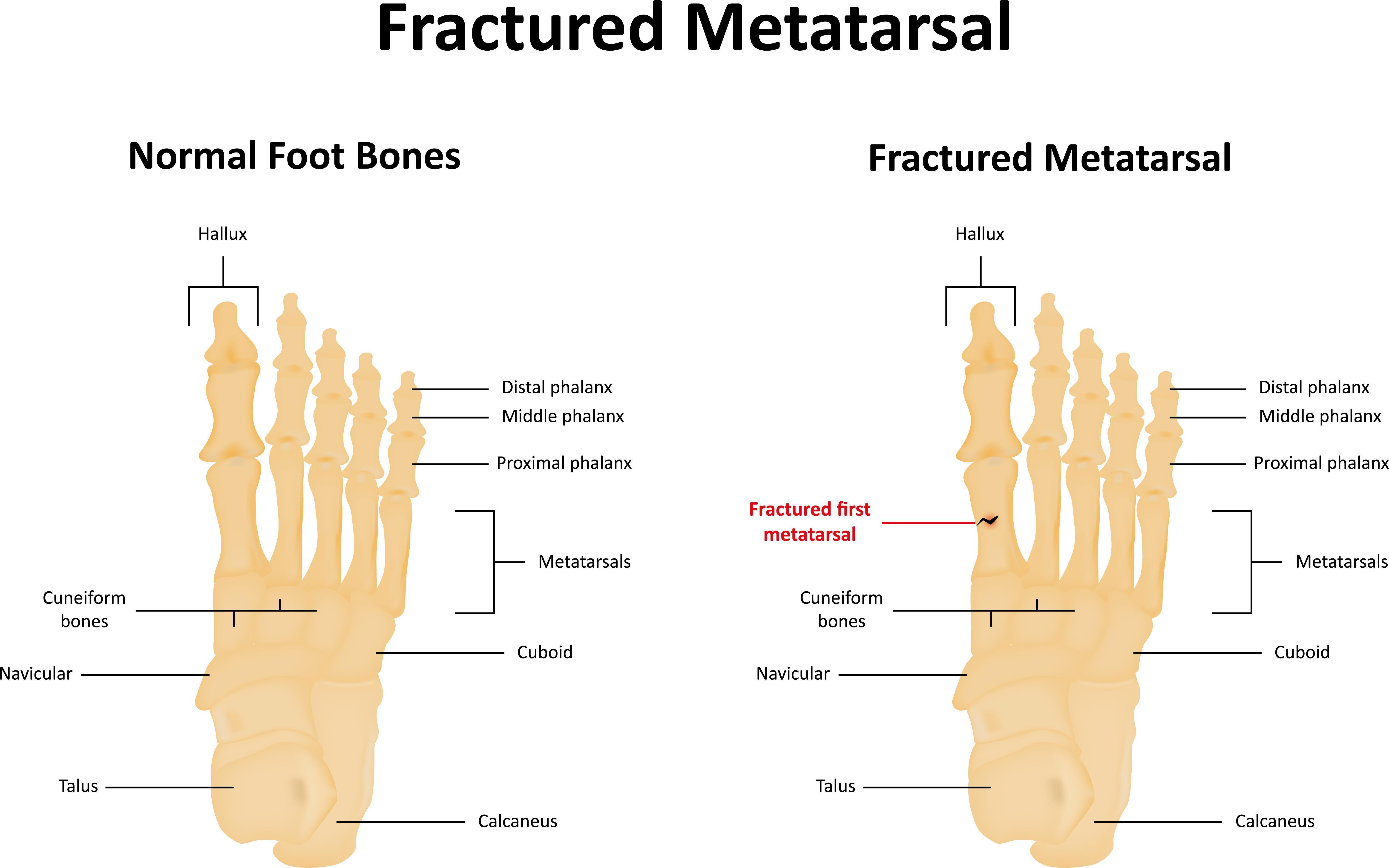 Foot Pain Diagram Metatarsalgia Foot Pain In Ball Palmerton Pa Pancholi Foot And