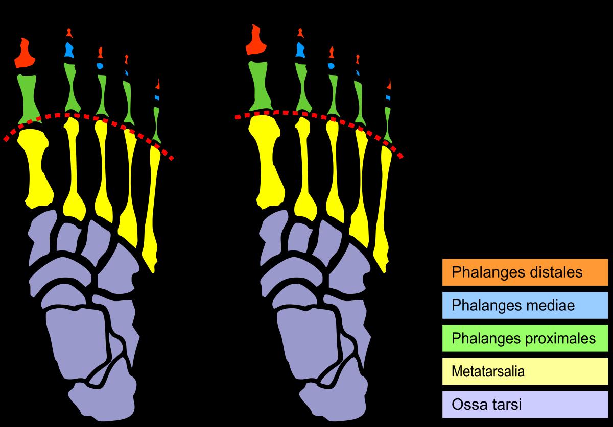 Foot Pain Diagram Mortons Toe Wikipedia