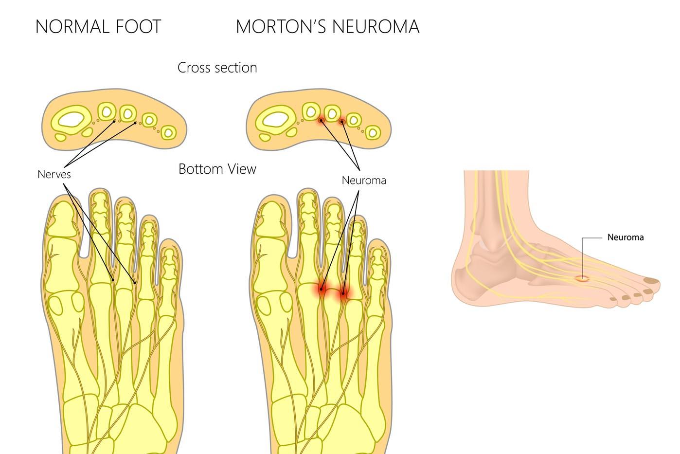 Foot Pain Diagram Orthotics Foot Pain Mar Shoes Orthotics