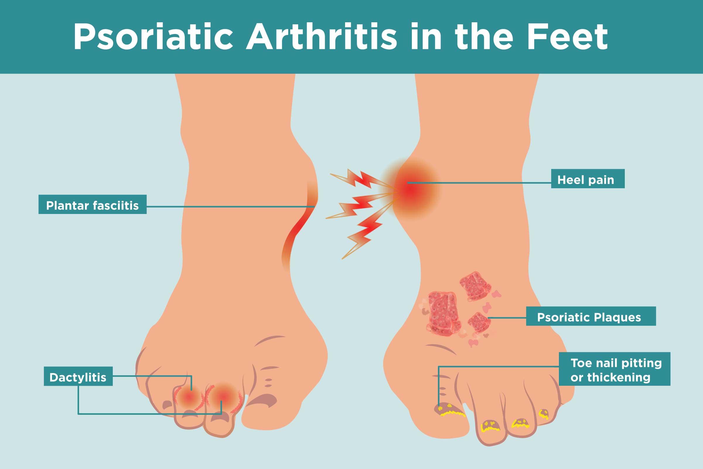 Foot Pain Diagram Psoriatic Arthritis In The Feet Symptoms Treatment Home Remedies