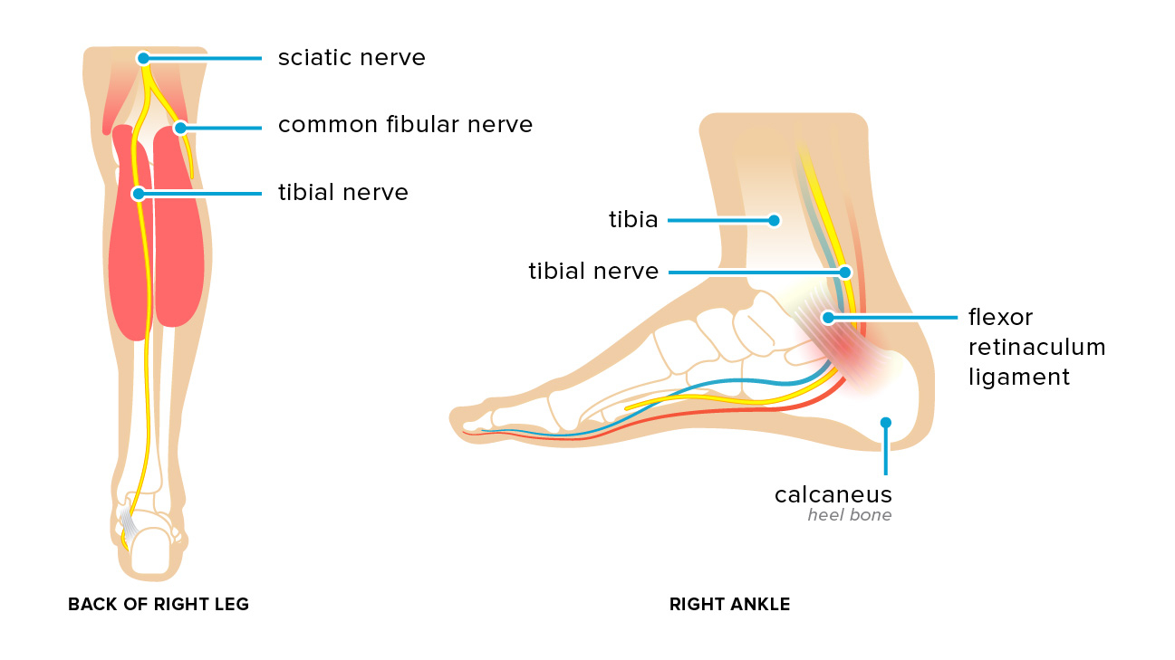 Foot Pain Diagram Tarsal Tunnel Syndrome Symptoms Causes And Treatments