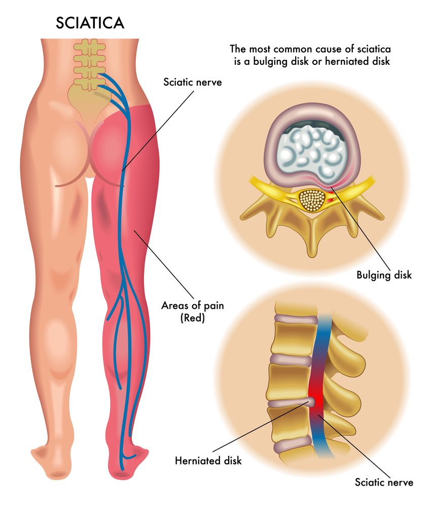 Foot Pain Diagram The Complete Sciatica Guide Types Causes And Treatments