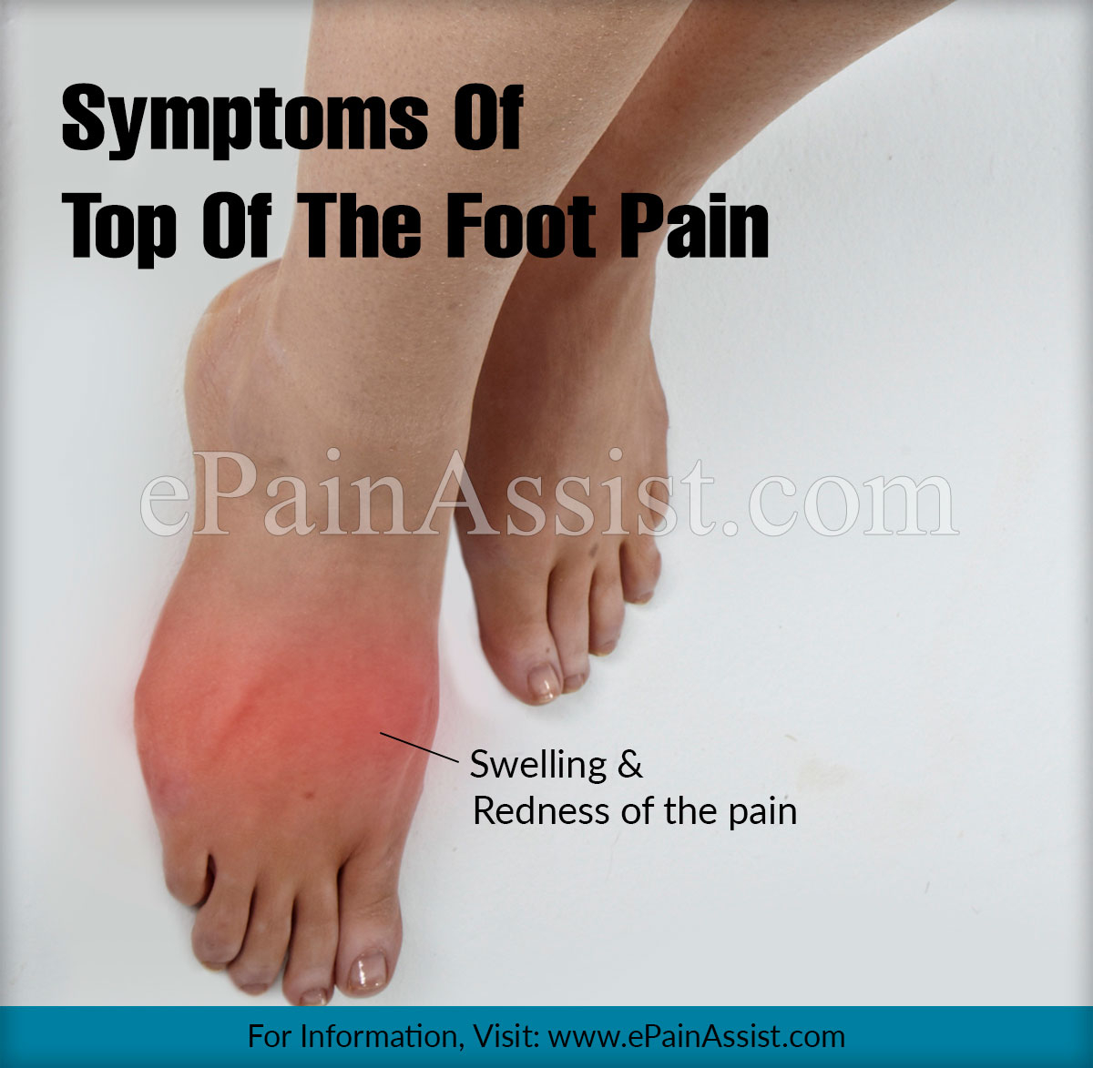Foot Pain Diagram Top Of The Foot Pain Treatment Exercises Causes Symptoms